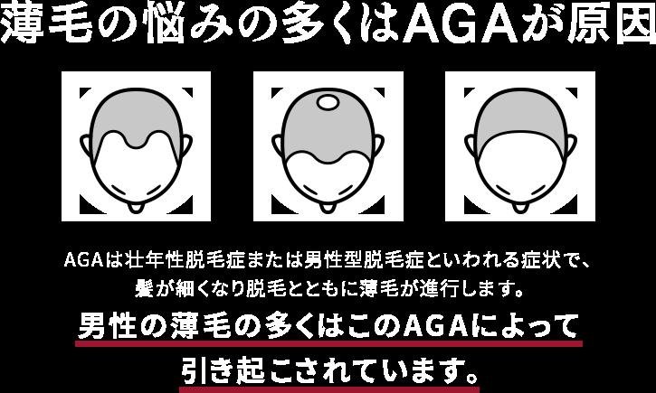 薄毛の悩みの多くはAGAが原因 AGAは壮年性脱毛症または男性型脱毛症といわれる症状で、髪が細くなり脱毛とともに薄毛が進行します。男性の薄毛の多くはこのAGAによって引き起こされています。