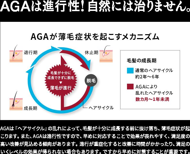 AGAは進行性!自然には治りません。 AGAが薄毛症状を起こすメカニズム AGAは『ヘアサイクル』の乱れによって、毛髪が十分に成長する前に抜け落ち、薄毛症状が起こります。 また、AGAは進行性ですので、早めに対応することで効果が表れやすく、満足度の高い改善が見込める傾向があります。 進行が重症化すると改善に時間がかかったり、満足のいくレベルの効果が得られない場合もあります。 ですから早めに対策することが重要です。
